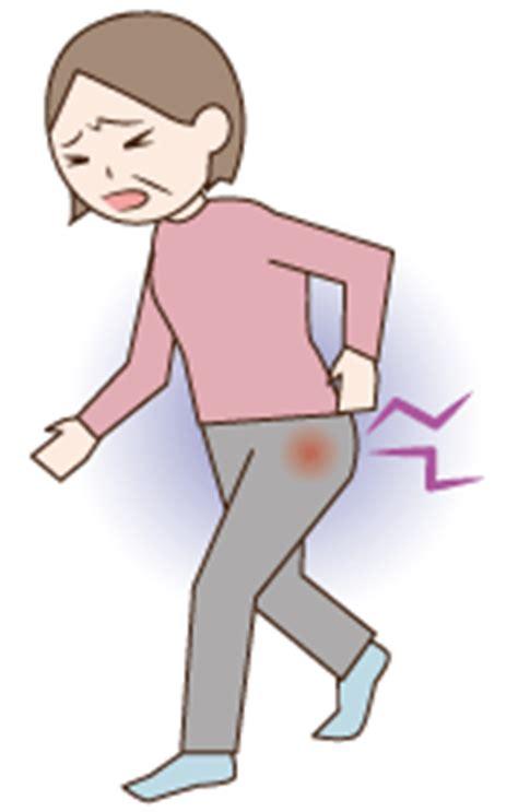 股関節痛 イラスト に対する画像結果
