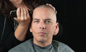 Nadeel FUE - het hoofd wordt meestal geheel kaal geschoren