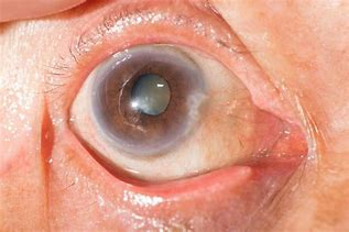 Image result for pic of eyes with cataracts