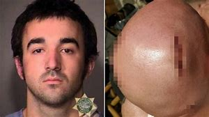 Portland Antifa who split man's head open with baton during June protests gets nearly 6 years in prison…
