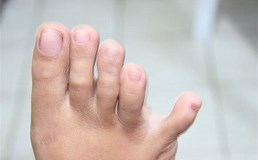 Image result for little toe. Size: 258 x 160. Source: www.wikihow.com