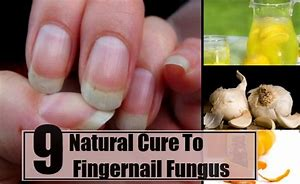 Image result for How To Cure Fungus