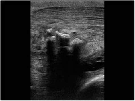 Image result for myositis ultrasound