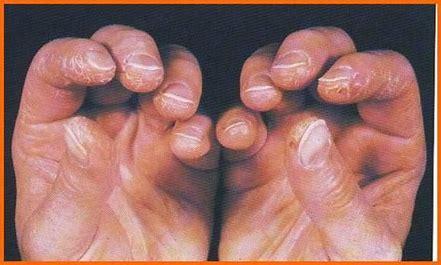 Image result for mechanics hands dermatomyositis