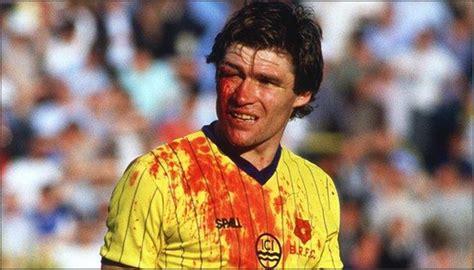 Image result for blackburn footballer derek fazackerly