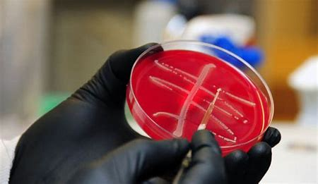 Superbug deaths in the U.S. decline…