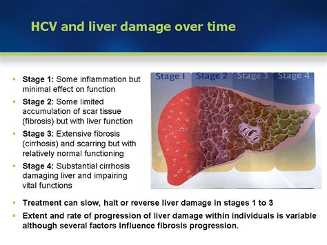 Liver damage alcohol Revitol Stretch Mark Removal ...