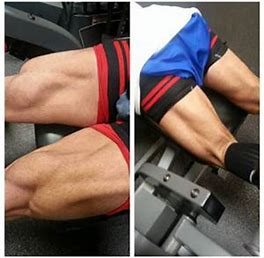 Image result for Bands Blood Flow Restriction Therapy